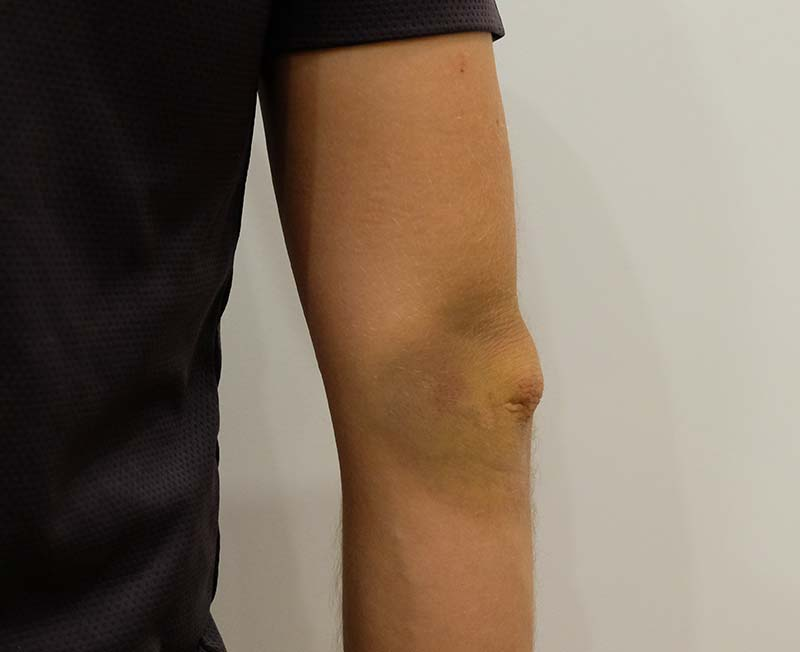 My almost Broken Arm in Vietnam - Luck was on my side!